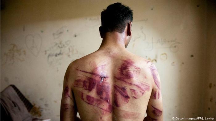 صورة من الأرشيف للآثار تعذيب تعرض لها سوري على يد قوات الأمن