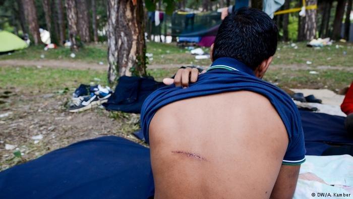 يقول هذا المهاجر أن الشرطة الكرواتية سببت له هذا الجرح