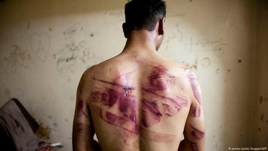 From file: Man with bruises on his back | Photo: James Lawler Duggan/AFP