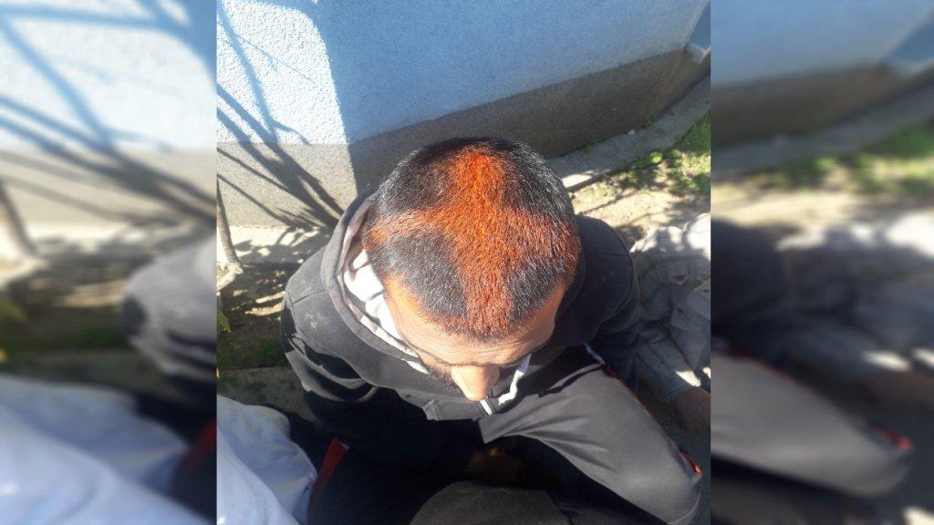 صورة لرأس مهاجر يزعم أن عناصر من الشرطة الكرواتية قاموا بتلوين رأسه. الحقوق محفوظة