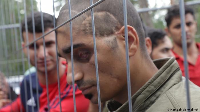 Hamzah alshwabkeh |احمد فقد عينه في انفجار سيارة مفخخة قبل 6 أعوام، وعبر بواسطة عينه الأخرى إلى ليتوانيا