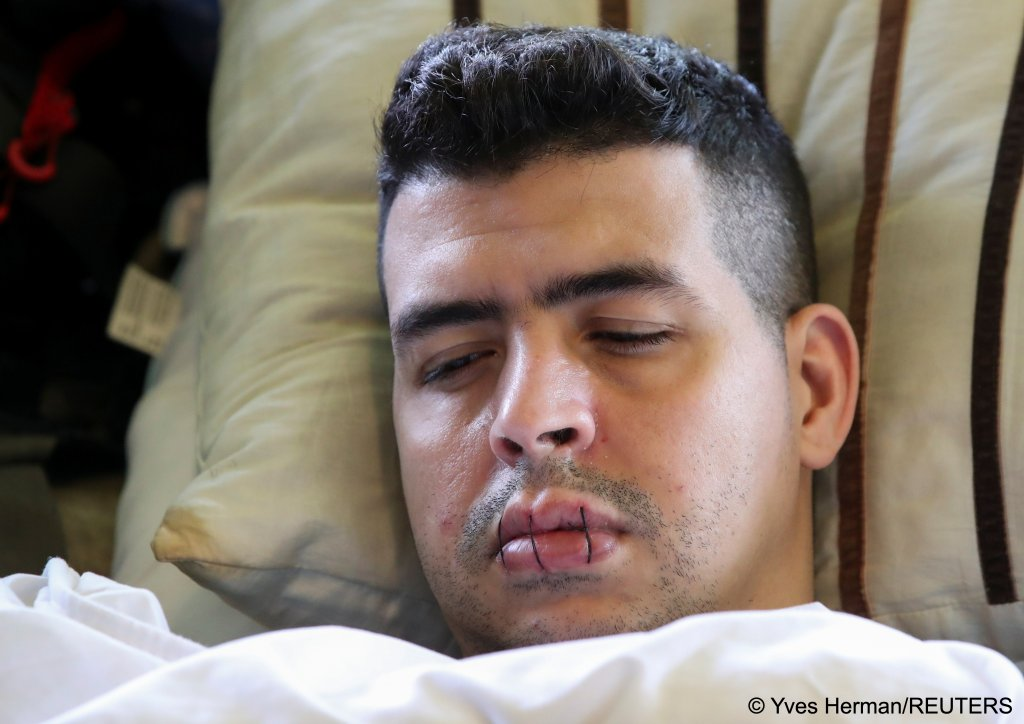 Sofiane, an asylum seeker, is seen with his lips sewed together in a room on the campus of Belgium university ULB, June 29, 2021 | Photo: Reuters/Yves Herman
