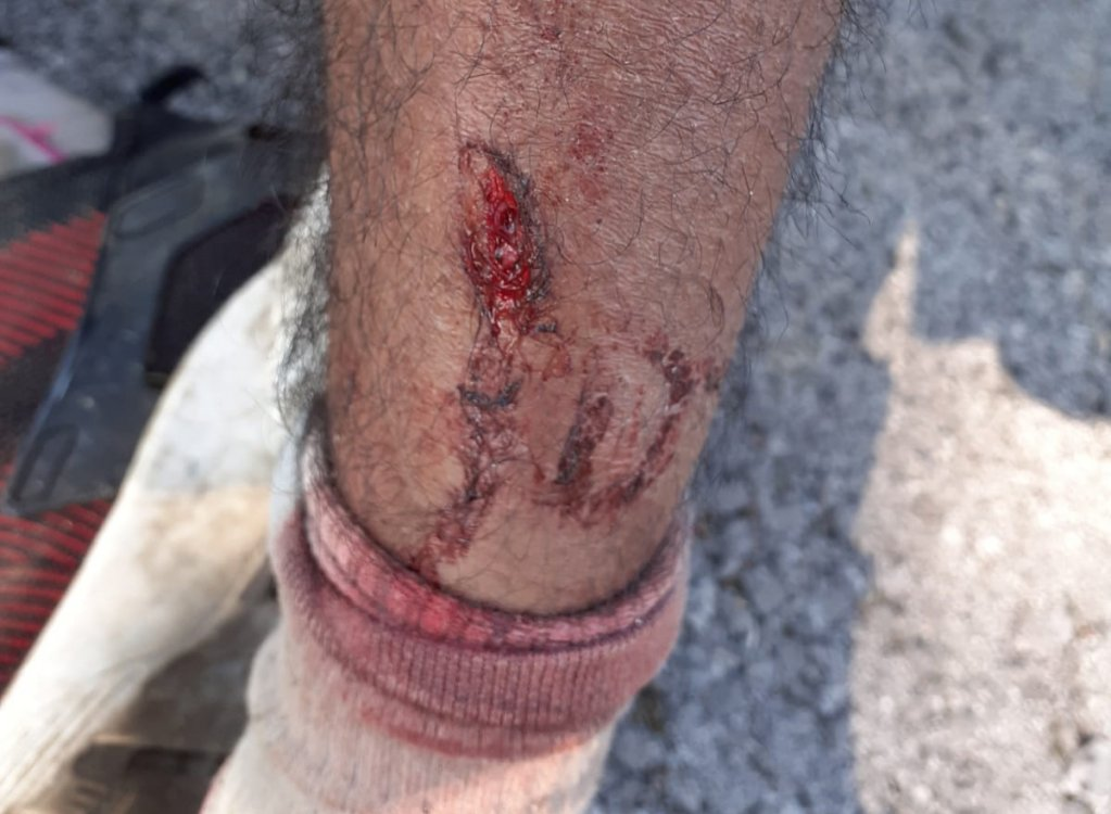 Un migrant montre sa blessure à la jambe causée selon lui par la police croate. Amnesty International a publié d'autres photos de blessures plus graves, que la rédaction d'InfoMigrants a choisi de ne pas diffuser. Crédit : Danish Refugee Council