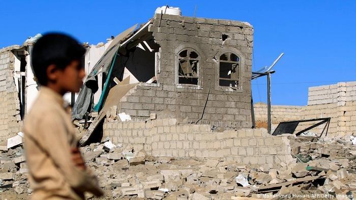 أطفال اليمن أكبر ضحايا الحرب الدائرة هناك.