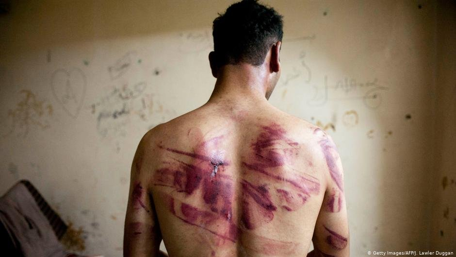 Torture victim in Aleppo | Photo: Getty Images/AFP/J.Lawler Duggan