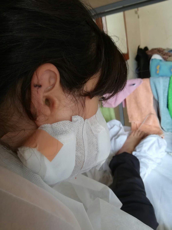 طفلة عراقية تعرضت لإطلاق نار في كرواتيا