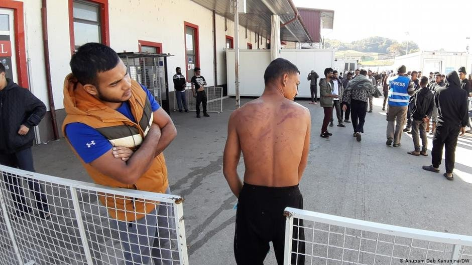 Migrants at the Miral camp show bruises they claim came from Croatian police   Photo: Anupam Deb Kanunjna/DW
