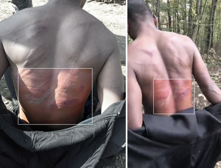 Still from a video taken in the aftermath of an alleged pushback by a Bosnian man on October 19, 2020 documenting a group of men displaying severe bruising on their backs | Credit: Border Violence Monitoring Network