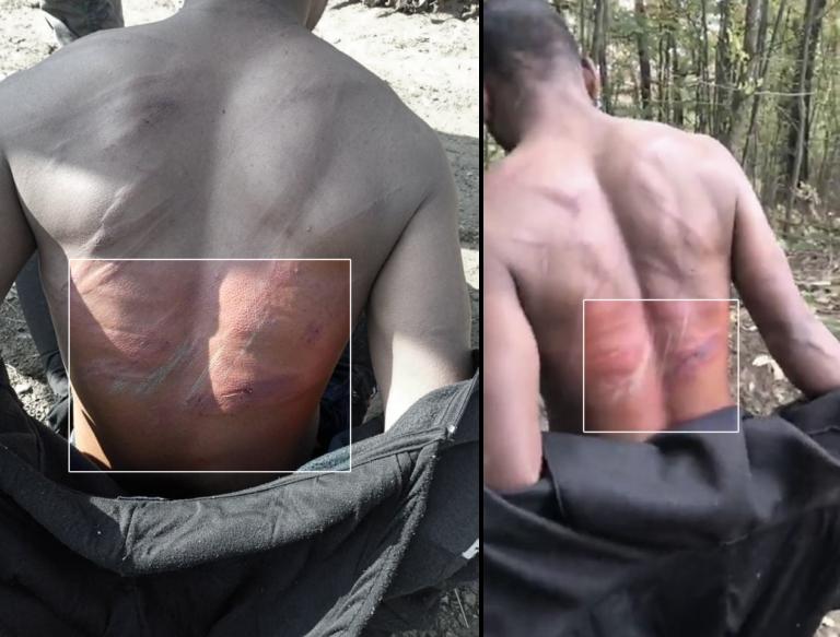لقطة من مقطع فيديو تم التقاطه  من قبل رجل بوسني في 19 أكتوبر / تشرين الأول 2020 ، يوثق مجموعة من الرجال تظهر عليهم كدمات شديدة على ظهورهم