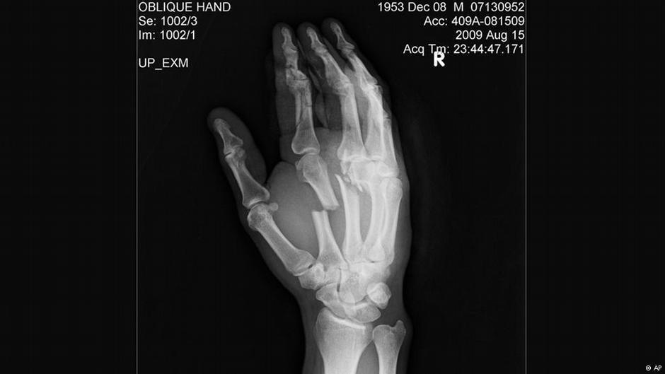صورة عظام اليد  باستخدام صور أشعة رونتغن (أو ما تسمى بأشعة إكس أو الأشعة السينية)