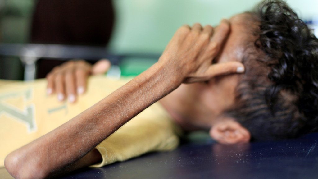 الطفل اليمني غازي أحمد، 10 سنوات، في مستشفى في تعز (رويترز 30 أكتوبر 2018)