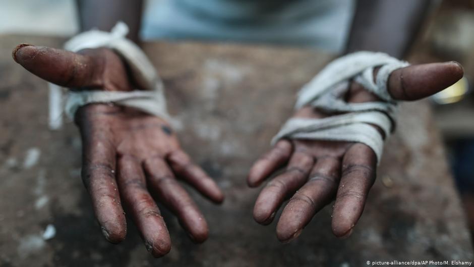 Cette personne a tent descalader la clture  Ceuta et montre ses blessures aux mains dcembre 2018  Photo M Elshamy