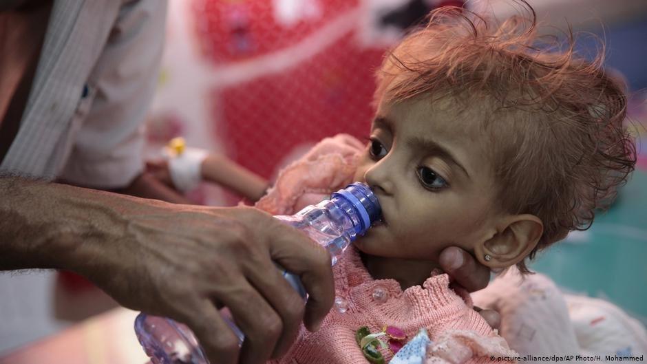 Malnourished Yemeni girl receives water