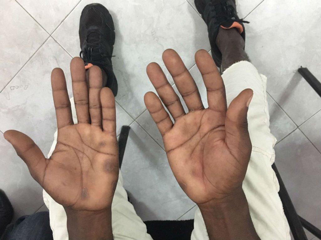 Ahmed nous montre ses mains blessées. Crédit : Leslie Carretero
