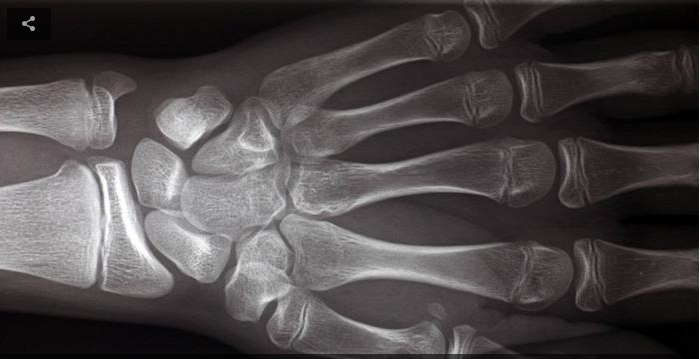 An  x-ray of the hand can help determine the age of a person