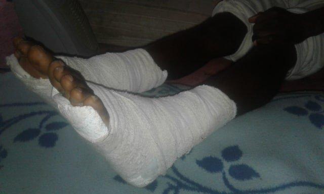 Alpha a reçu des balles dans les deux pieds alors qu'il était en centre de détention en Libye. Crédit : DR