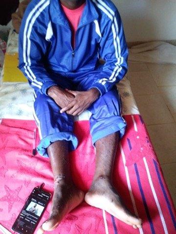 Malgr sa blessure aux pieds Alpha peut aujourdhui marcher Crdit  DR