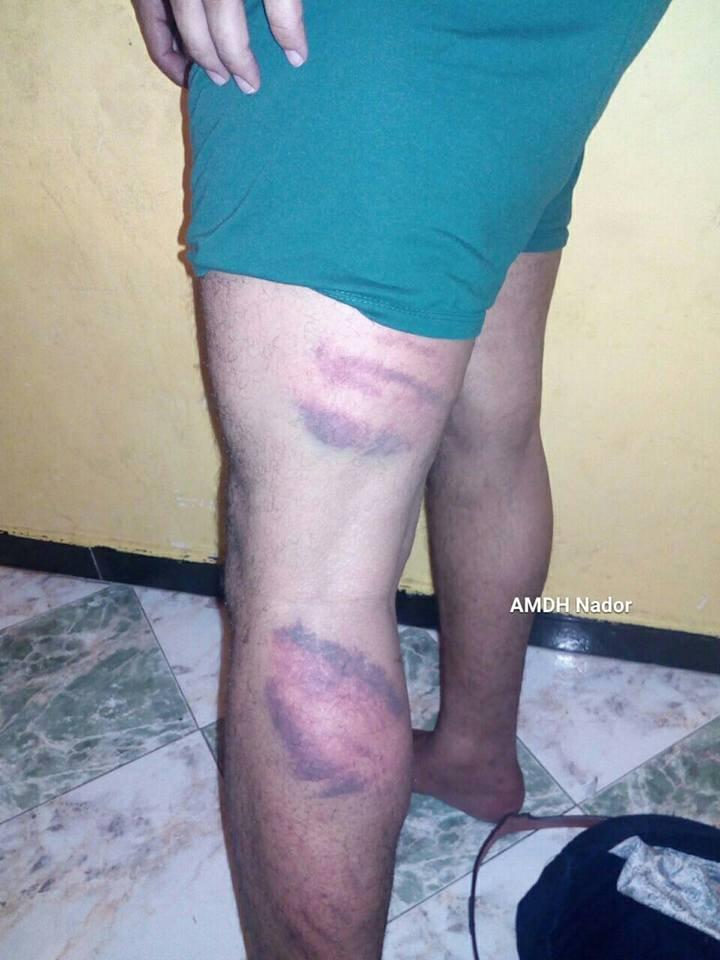 آثار التعذيب على جسد طالب لجوء يمني/ الجمعية المغربية لحقوق الإنسان