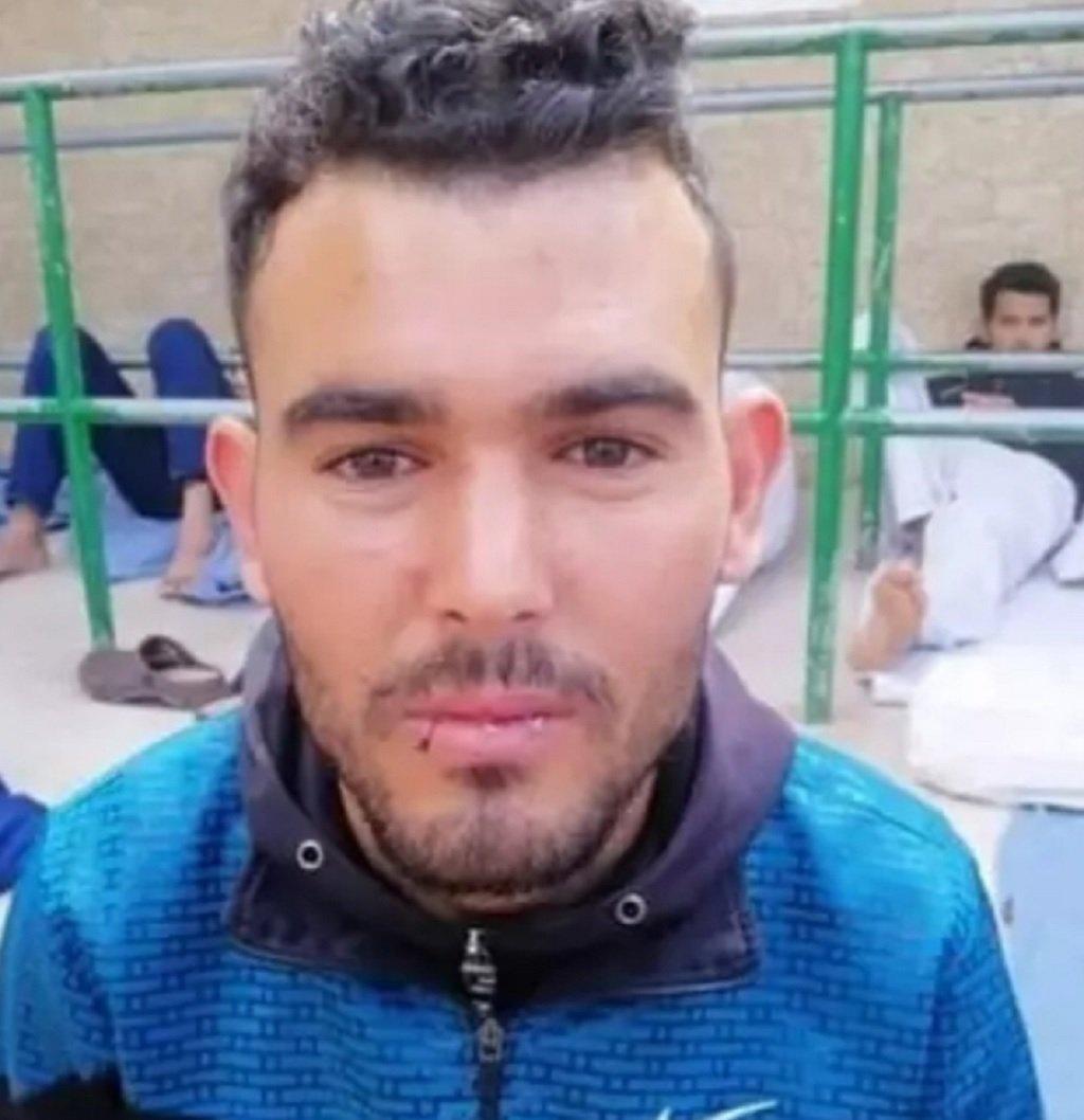 أحد المهاجرين المشاركين بالإضراب عن الطعام، ويظهر كيف خيّط فمه. الصورة أرسلها لنا أحد المهاجرين من داخل مركز مليلة