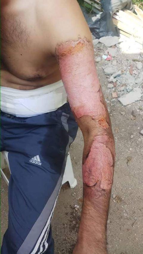 Ahmad a pris en photo sa brûlure au bras après un accident en Turquie | Photo : Privée
