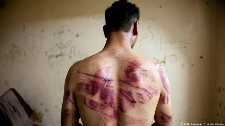 A Syrian man shows marks of torture on his back | Photo: Getty Images/AFP/J.Lawler Duggan