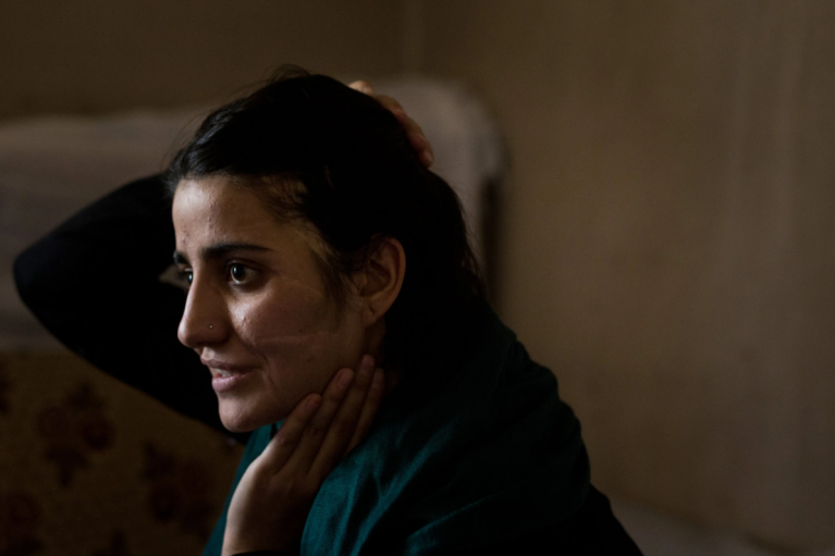 Gul Meena shows the scars on her face. After she ran away from an arranged marriage, her brother and uncle found her and attacked her with an axe |  Photo: Screenshot Jim Huylebroek/New York Times