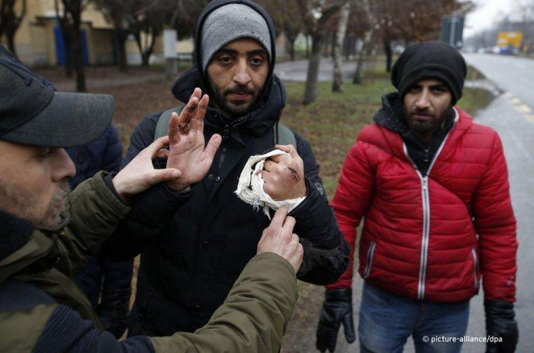 Cet homme montre ses blessures aux mains, après avoir tenté de traverser la frontière entre la Hongrie et la Serbie en janvier 2020. Crédit : AP