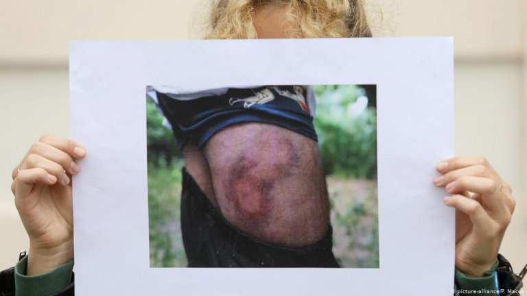 Croatia's president has tried to downplay reports of bruises and injuries   Photo: Picture-alliance/P.Macek